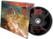 CDdigi MORBID ANGEL - BLESSED ARE THE SICK FDR
